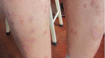 红皮病型牛皮癣症状表现