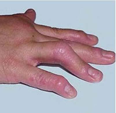 脓疱牛皮癣的治疗方法有哪些