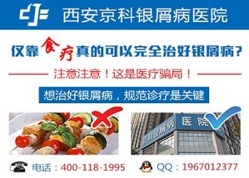 郑州市银屑病研究所怎么走