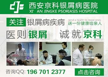 郑州治银屑病的医院