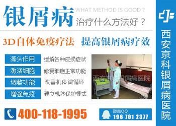 郑州治银屑病最好的医院