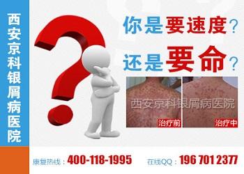 郑州最好的银屑病医院