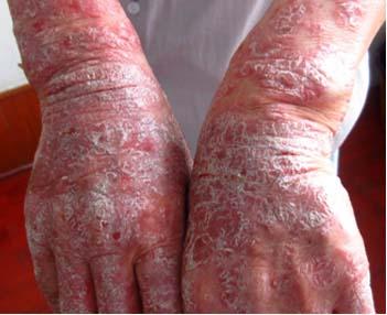 牛皮癣发病初期的症状表现